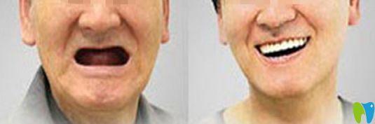 全口种植牙前后对比图