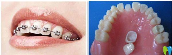 牙齿矫正做美容冠好还是带牙套好?