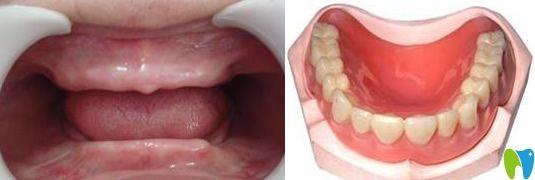 全口牙缺失怎么办