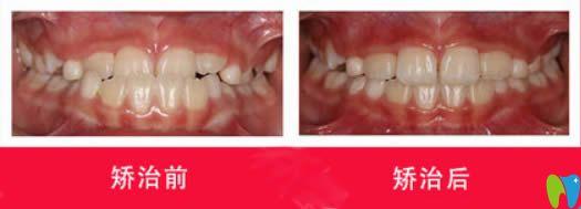 西安中诺口腔张孜儿童地包天选择MRC肌功能矫正前后对比效果