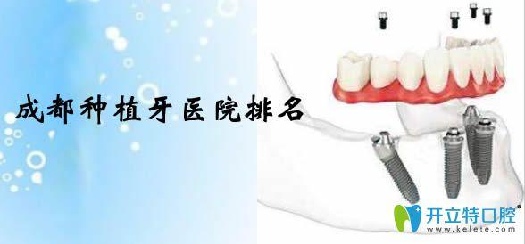 今天公布成都种植牙价格表及成都种植牙医院排名情况