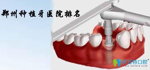 通过郑州种植牙医院排名及价格揭晓郑州种植牙哪家医院好