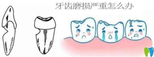 深挖牙齿磨损的原因,了解牙齿磨损会自动修复吗及如何修复
