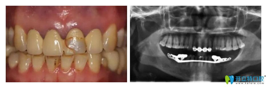 烤瓷牙失败有口臭,我在上海沪华口腔做了即刻种植牙修复