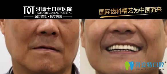 重庆牙博士瑞士iti亲水种植牙案例对比图