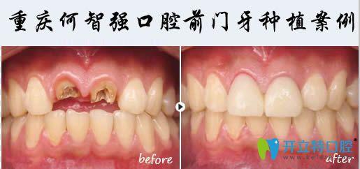 重庆何智口腔前门牙缺失两颗种植后效果图