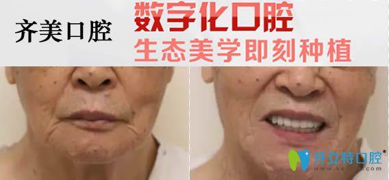 重庆齐美口腔60岁老人全口种植牙对比效果