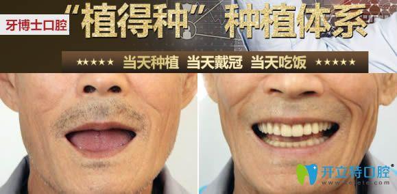 重庆牙博士口腔全口种植牙效果图