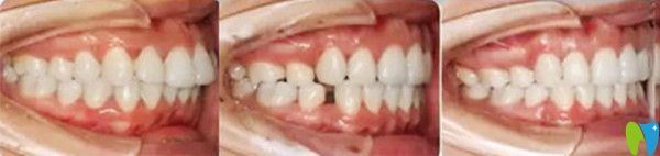 隐形牙齿矫正治疗前后变化图