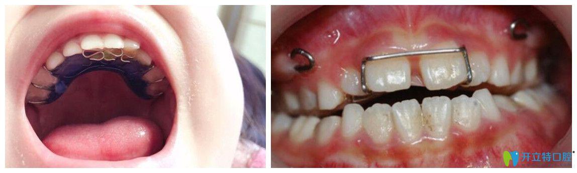 反颌矫治器佩戴图片