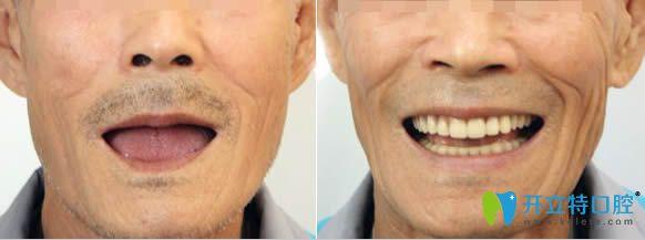 泉州维乐谢燕峰医生3D数字导板全口种植牙对比效果