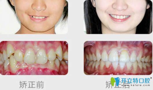 泉州维乐黄鸿进医生成人牙齿拥挤矫正前后对比效果