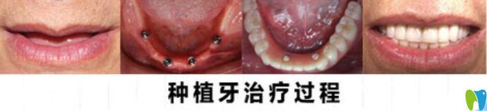 重庆齐美口腔种植牙治疗过程图
