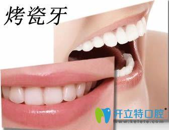 辽阳东福口腔教大家如何选择适合自己的烤瓷牙材料
