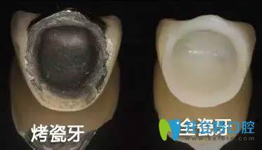 金属内冠烤瓷牙和全瓷牙对比图