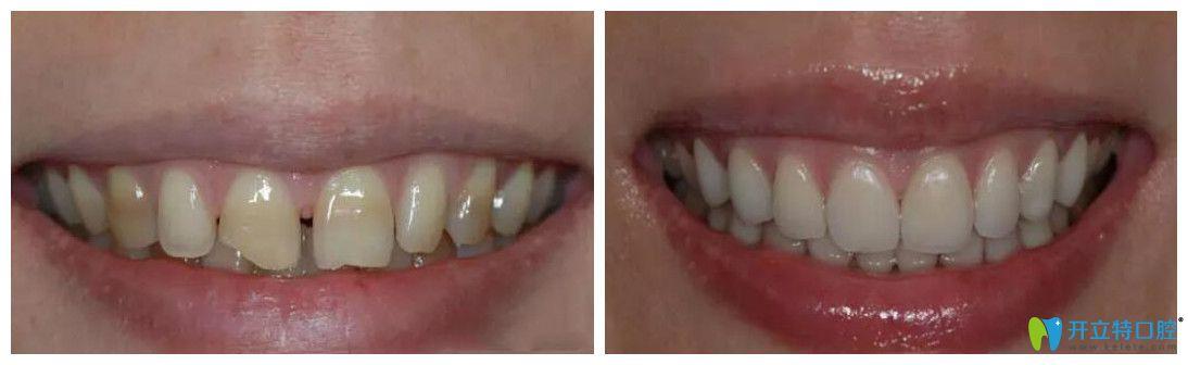 杭州艾芳口腔四环素牙修复案例