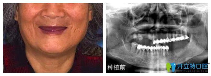 林阿姨的穿颧骨全口种植牙是南京博韵口腔陈慧玲院长做的