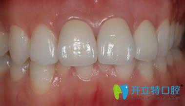 我在辽阳东福口腔做的二氧化锆全瓷牙图