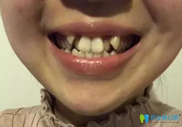 在杭州艾芳口腔矫正牙齿,我拔过牙加过弹簧还上过橡皮筋