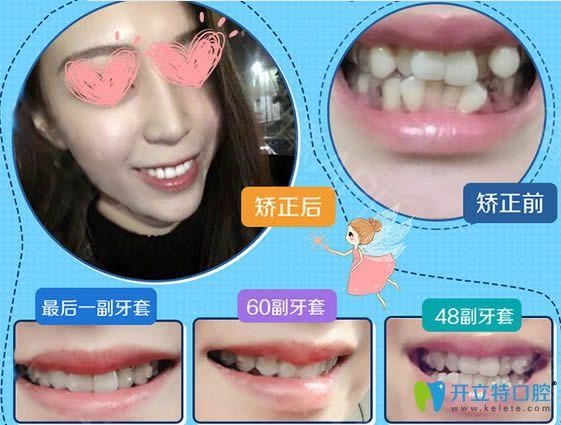 西安壹加壹牙科成人牙齿拥挤矫正前后对比照