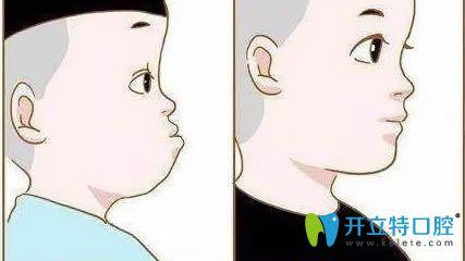 带你了解地包天牙性和骨性的区别,附反颌牙矫正的五个步骤