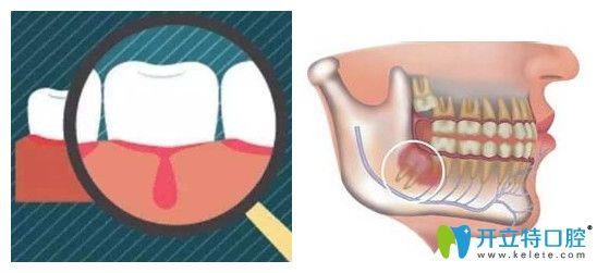 牙医讲出了牙齿冠周炎与牙周炎的区别