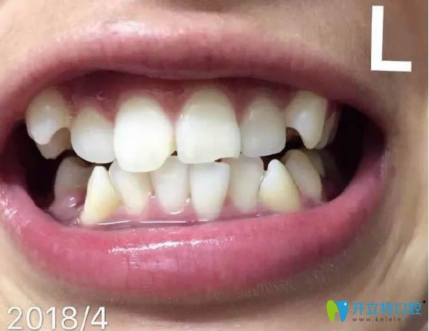 记录去西安壹加壹做牙齿矫正的经历,附戴牙套1-12个月变化图