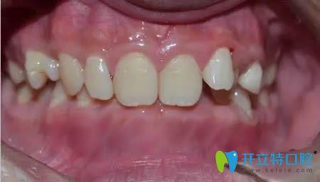 写日记记录在厦门康德佳口腔矫正牙齿近两年的历程