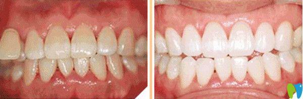 牙齿美白前后对比图