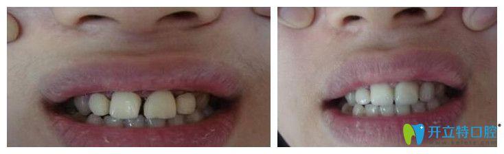 武汉欧燕口腔牙齿美容冠修复前后对比图