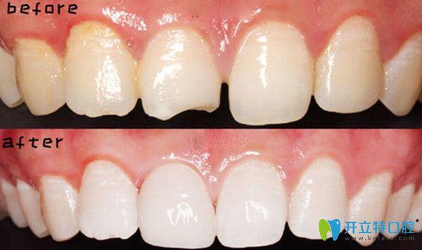 二氧化锆全瓷牙效果对比图片