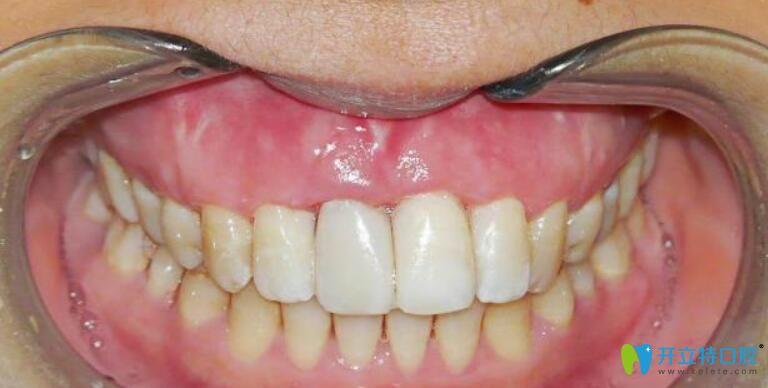 牙龈萎缩修复再生手术