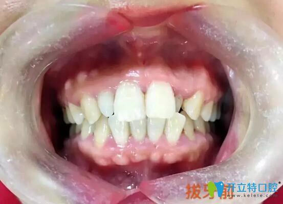 80后妹子在武汉欧燕口腔做金属托槽牙齿矫正后,被怀疑整形