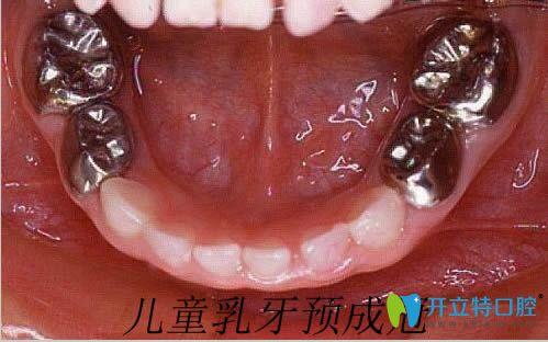 儿童乳牙根管治疗后的预成冠