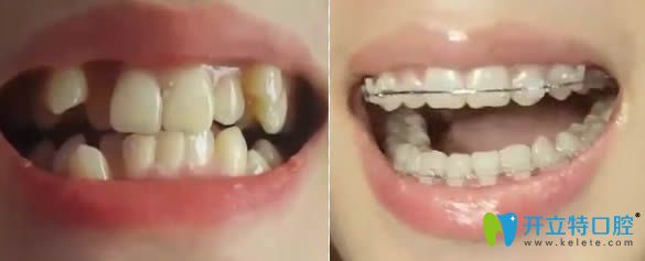 贵阳京华牙科成人虎牙矫正前后对比效果