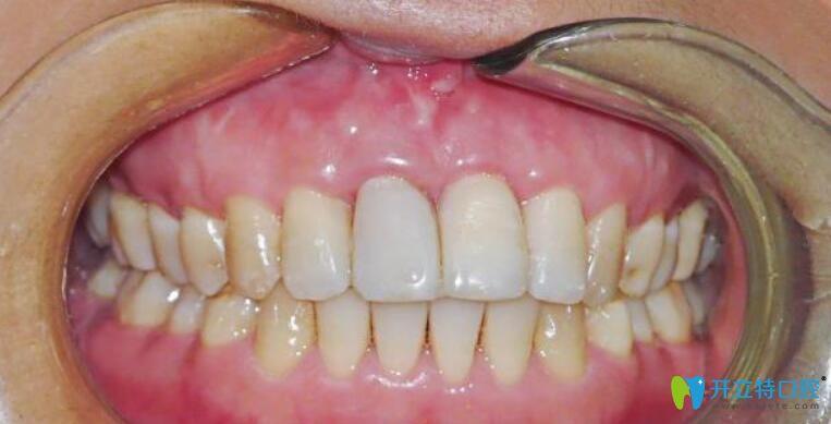 真人案例来验证牙龈萎缩修复再生手术是否有效