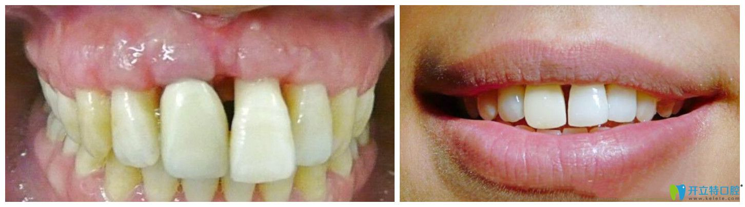 牙龈萎缩治疗过程