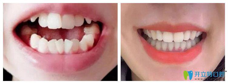 武汉欧燕口腔隐形牙齿矫正案例