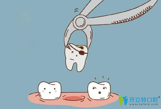 乳牙滞留及时拔除