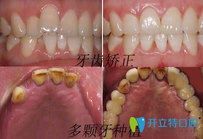 安徽维多利亚口腔牙齿矫正和种植牙效果图