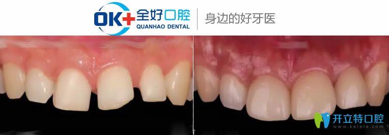 赵长亮医生全瓷贴面修复案例对比图