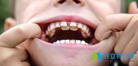 乳牙滞留图片