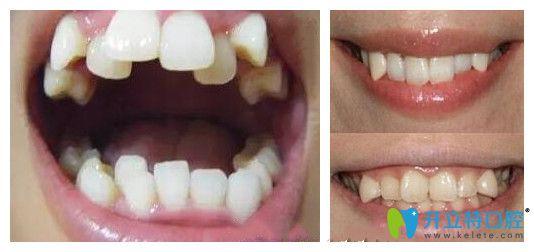 八重牙是什么样子
