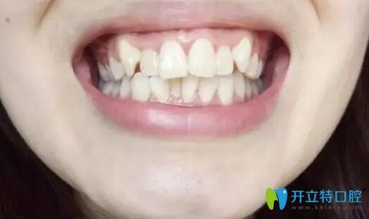 在大连全好口腔做金属托槽牙齿矫正效果,说明30岁正畸不迟