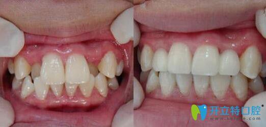 八重齿矫正前后效果