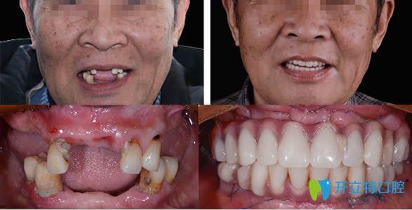 青岛维乐口腔种植牙真人案例效果图