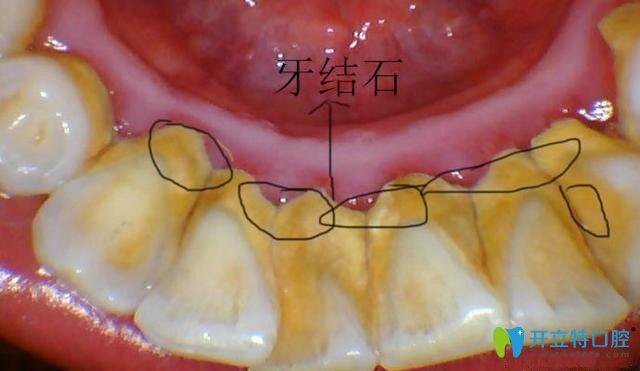 超声波去牙结石