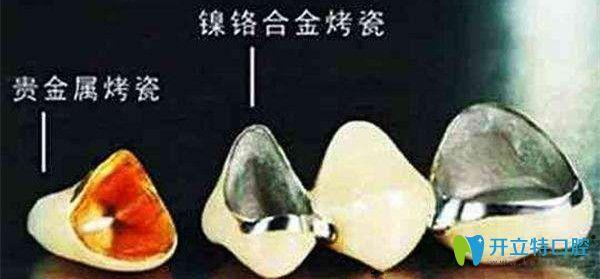 金属类假牙有贵金属烤瓷及镍铬合金烤瓷等