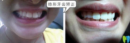 鹏博口腔门牙突出隐形矫正效果
