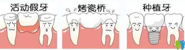 哪些假牙不能做核磁共振?